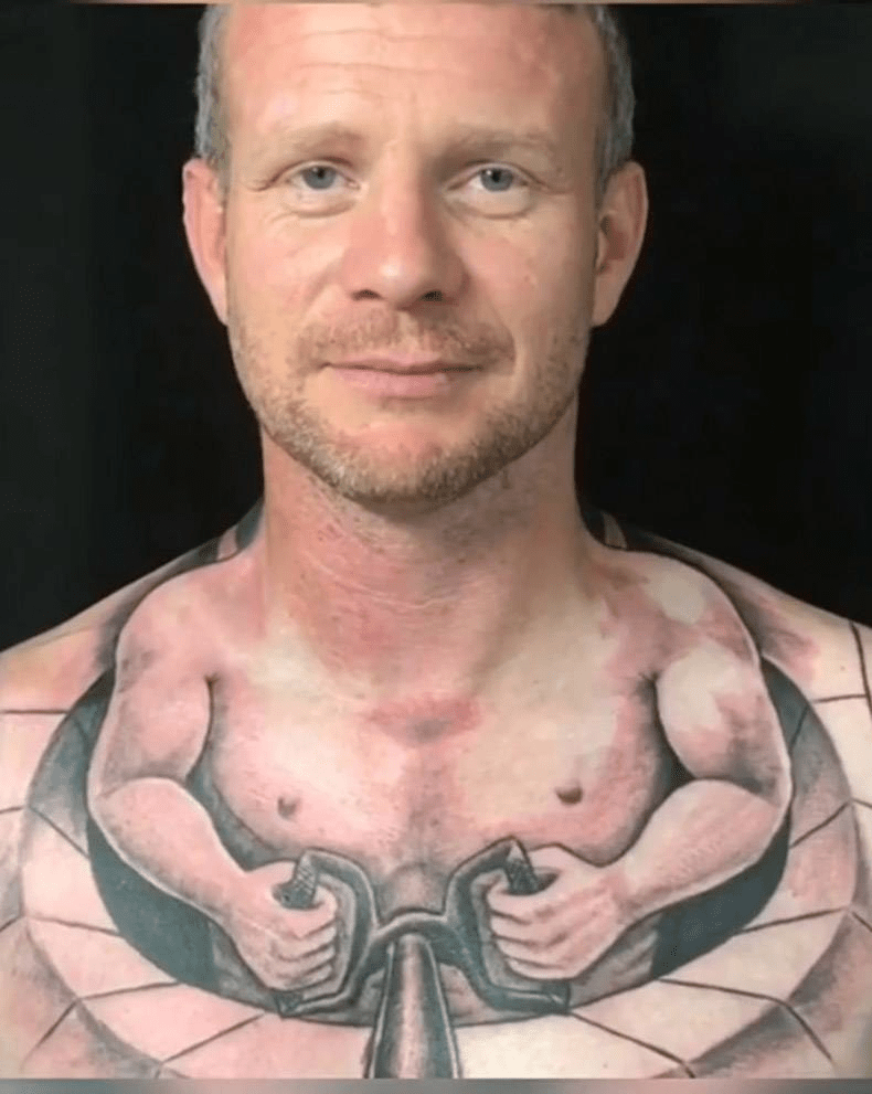 Horrible Pictures – Tips on Getting Rid of That Horrible Tattoo